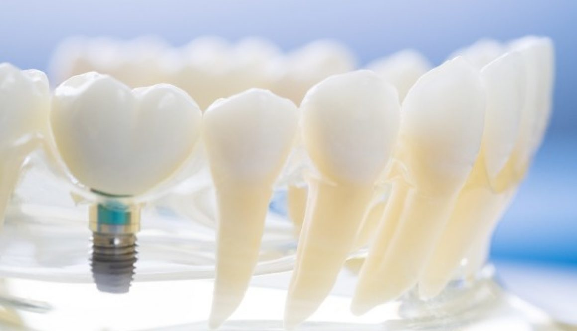 Implant-fairviewfamilydental