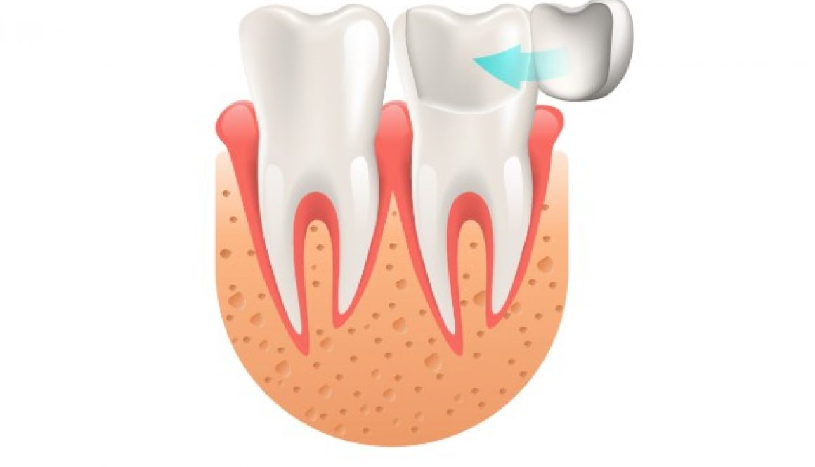 crowns-and-veneers-fairviewfamilydental