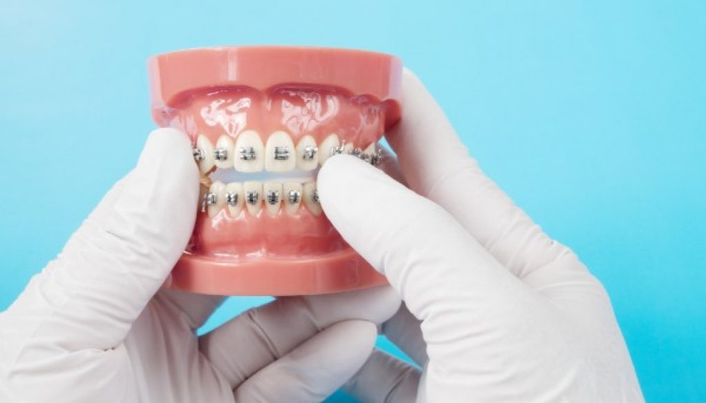 orthodontic-fairviewfamilydental