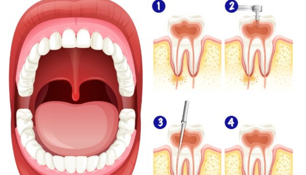 root-canal-treatment-fairviewfamilydental