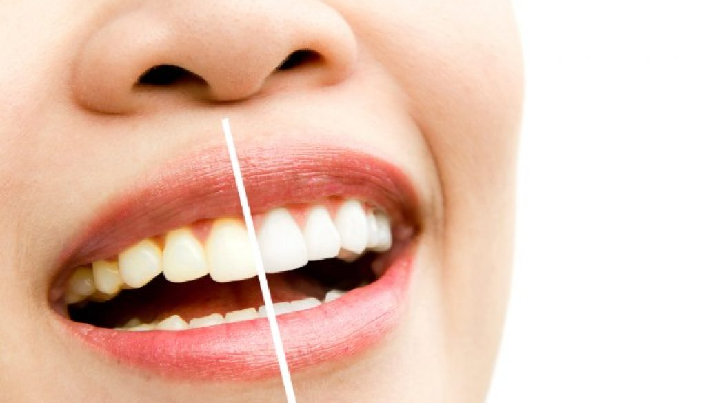 teeth-whitening-fairviewfamilydental